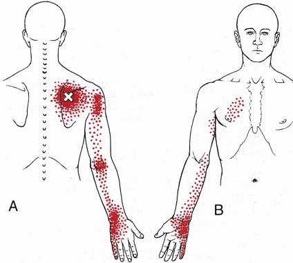 Pain patterns due to infraspinatus trigger point